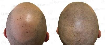 Tricopigmentazione: prima-dopo intervento effetto rasato