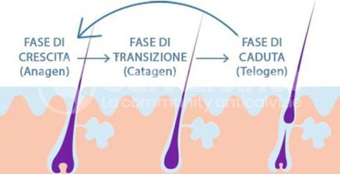 sindrome dell'anagen corto