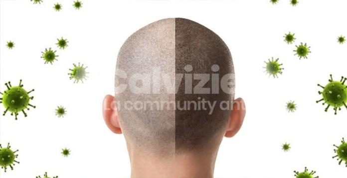 alopecia sistema immunitario