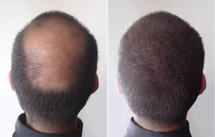 fibre capillari microfibre cheratina rimedio istantaneo diradamento capelli