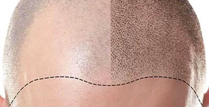 tricopigmentazione prima dopo