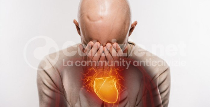 calvizie malattie cardiache