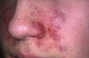dermatite seborroica al volto durante lo sviluppo