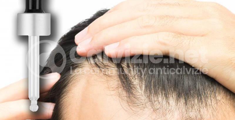 Caduta capelli uomo testosterone