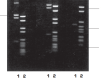 Ultra-Pure Reagents for Electrophoresis
