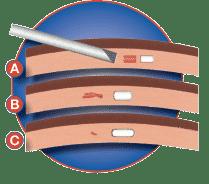 Solidose Implants