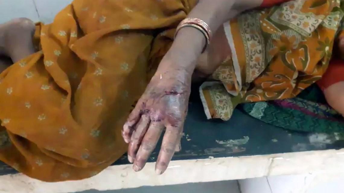 दमोह जिले के जगल में भालू ने महिला पर किया हमला