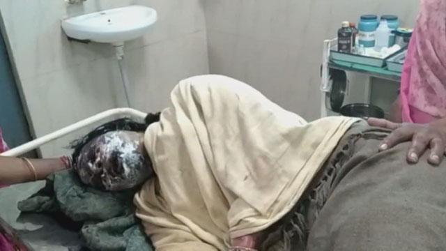 सुसराल पक्ष ने महिला को जिंदा जलाया