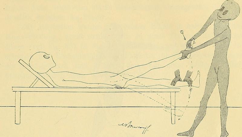 lechebnaya-gimnastika-v-ginekologii-po-Ture-Brandtu-illyustratsii 18