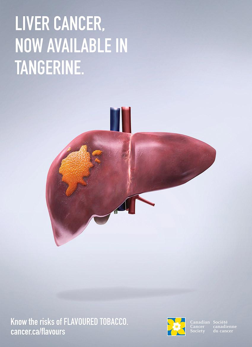 liver_cancer_cotw