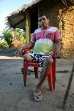 Nerivaldo Nascimento e Silva, que teve a perna direita amputada após ser alvejado por agente da Polícia Federal (à paisana) em ação na Terra Indígena, 2012, por Daniela Alarcon.