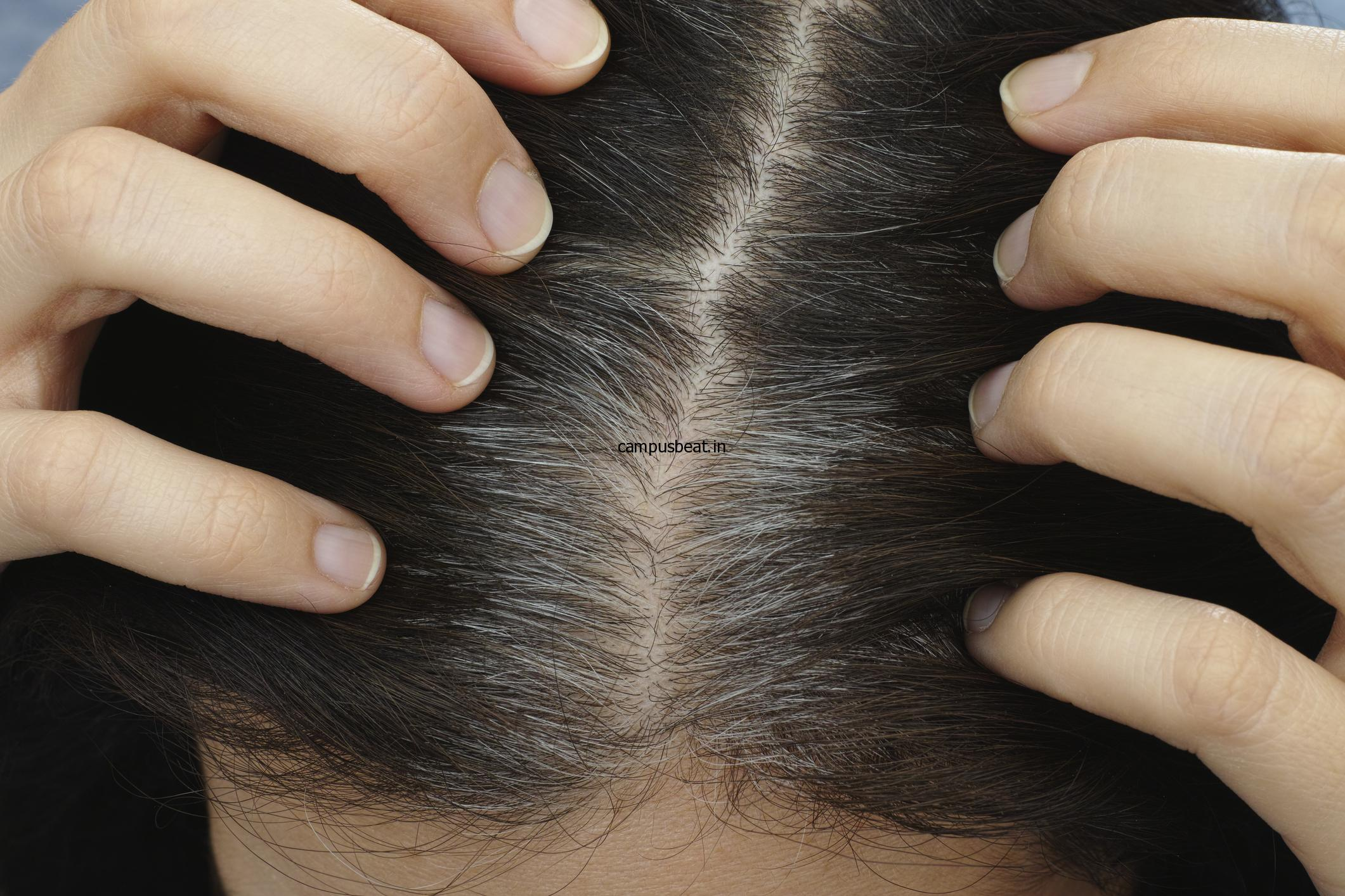 Why sometimes hair turns grey at an early age?