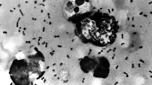 China just warned the world about new cases of the deadly bubonic plague, should we be worried?
