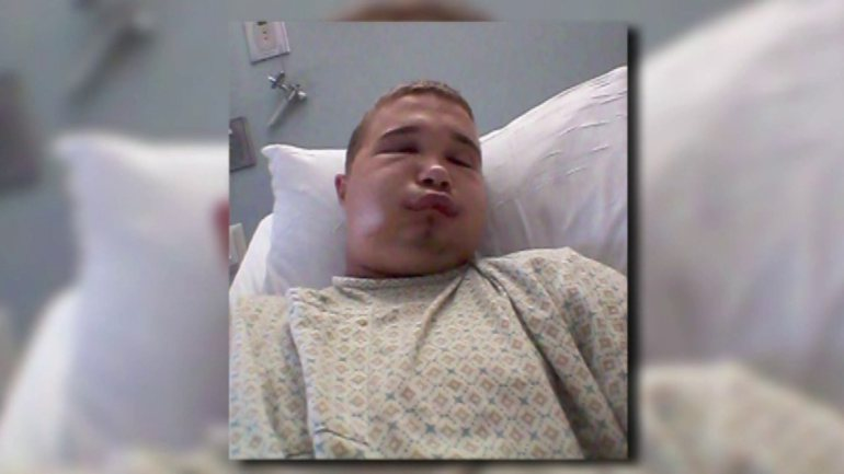 Water Moccasin Bites Man : Teen May Face Charges For