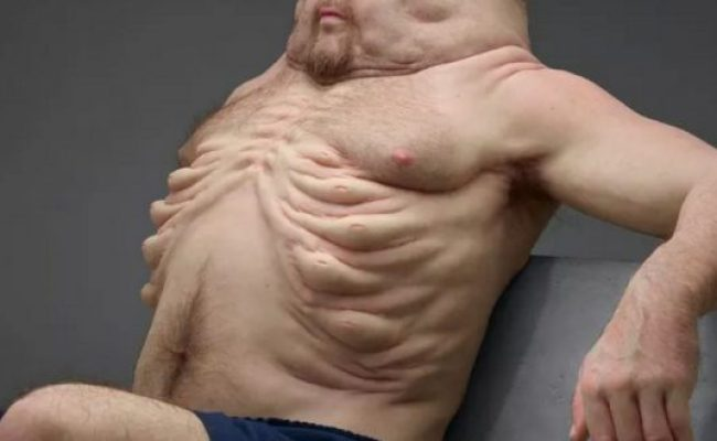 Meet Graham The Ideal Body Type To Survive A Car Crash