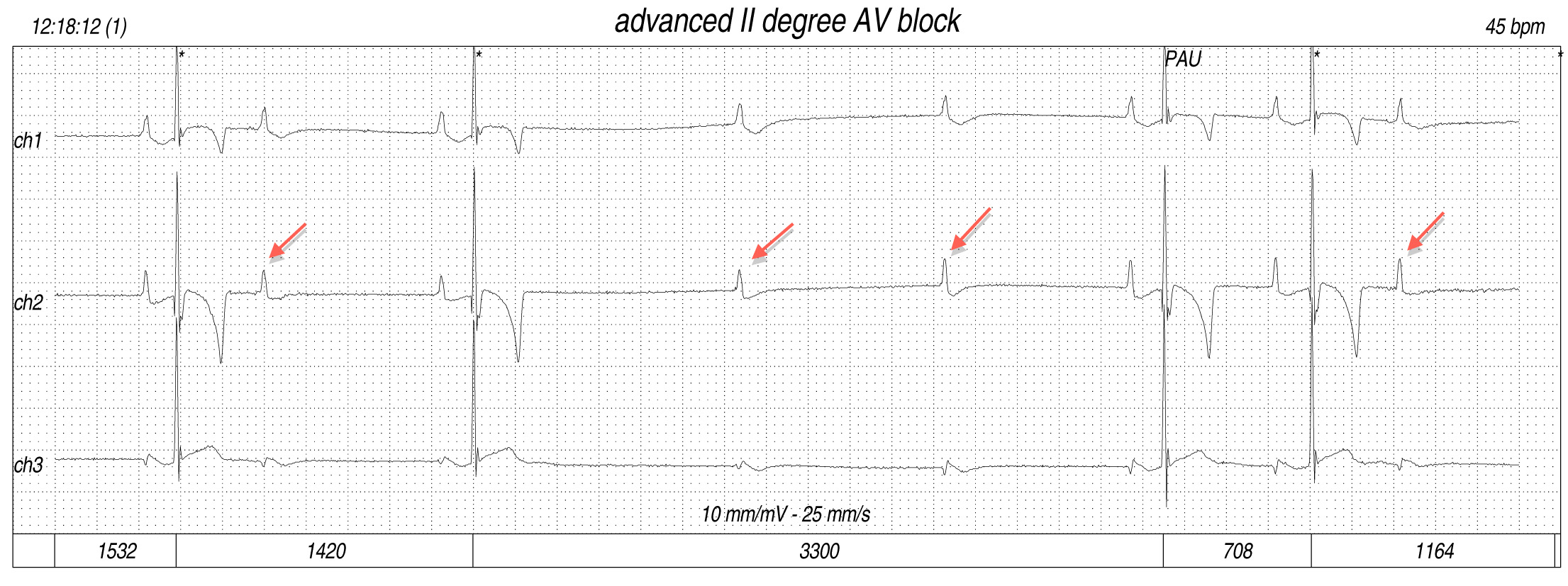 Pacemaker placement for treatment of advanced second