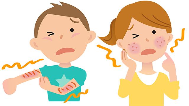 アトピー・掌蹠膿疱症