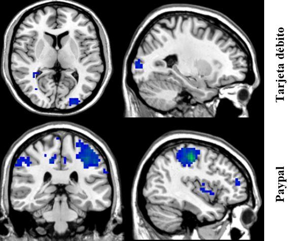 Áreas cerebrales activadas durante el procesamiento de Tarjeta de débito y Paypal