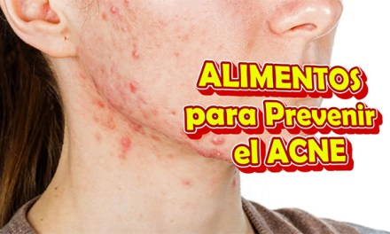Alimentos para Prevenir el Acne o Comidas para Evitar el Acne