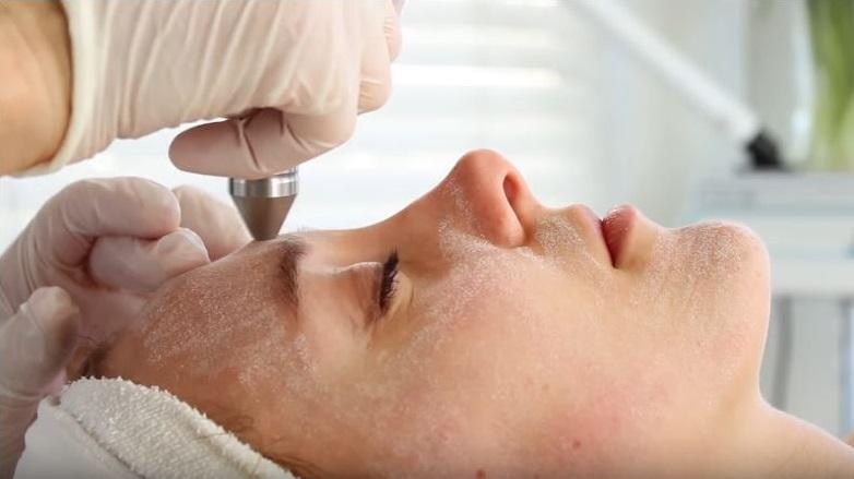 como quitar cicatrices de acné fácilmente