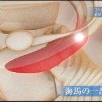 NHKスペシャル 「キラーストレス」(2)