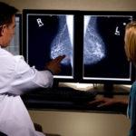 免疫療法で転移性乳がんが寛解
