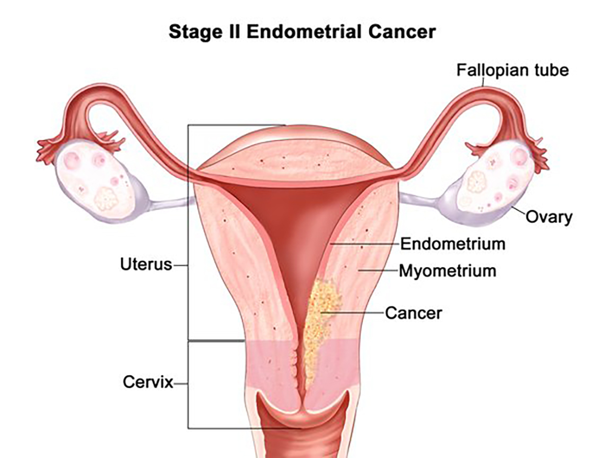 hight resolution of stage 2 endometrial cancer illustration