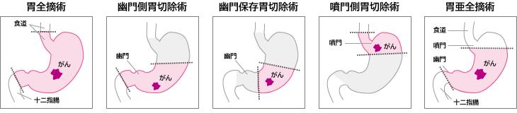 胃がんの治療と選択 – がんプラス