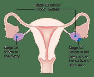 卵巢癌治療