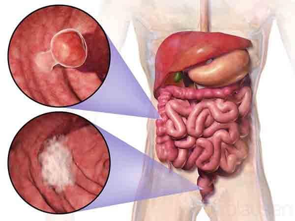 癌症掰掰-大腸癌直腸癌