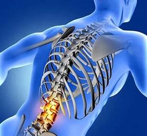 癌症癌細胞轉移到脊椎的症狀與對策