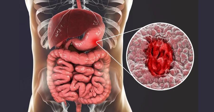 胃癌症狀治療與胃癌分期檢查