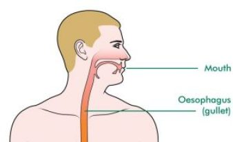 What Causes Oesophageal Cancer at different levels