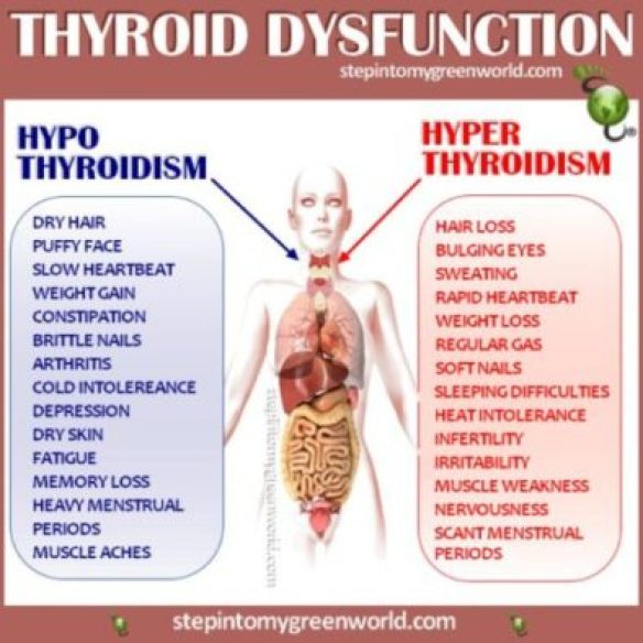 symptoms of thyroid dysfunction