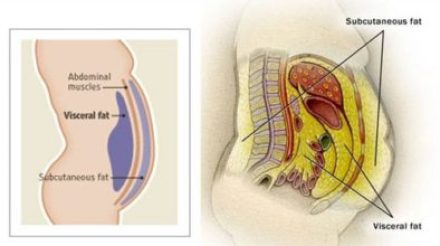Visceral fat, or abdominal fat, is a type of body fat that exists in the abdomen and surrounds the internal organs.
