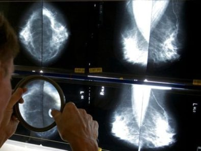 over-diagnosis of breast cancer