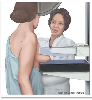 MAMMOGRAPHY AND BREAST CANCER DIAGNOSIS