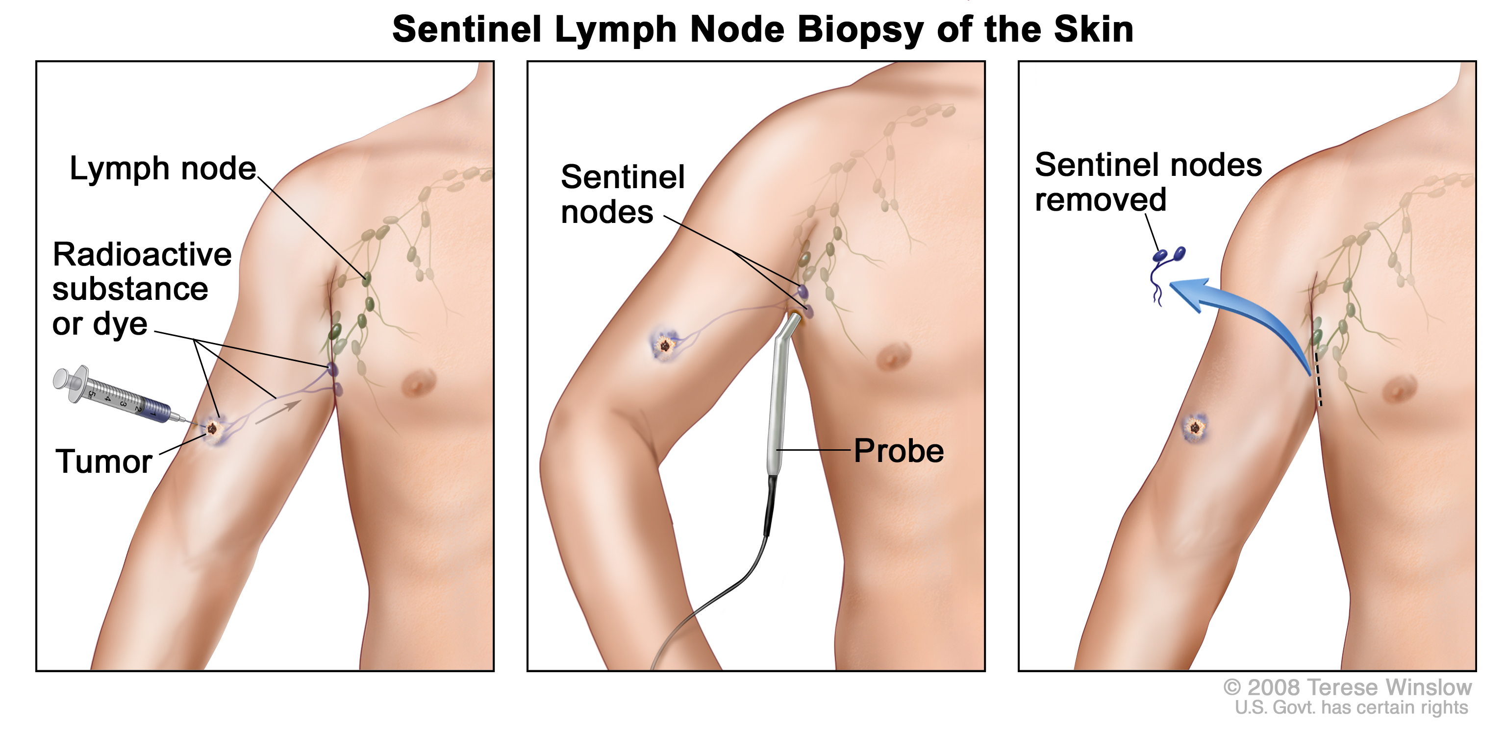 location of lymph nodes in armpit diagram heil hvac wiring diagrams how to treat swollen the