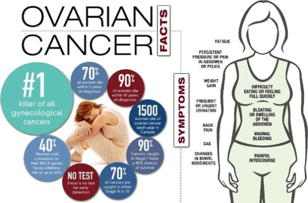 How is Ovarian Cancer Diagnosed and Detected