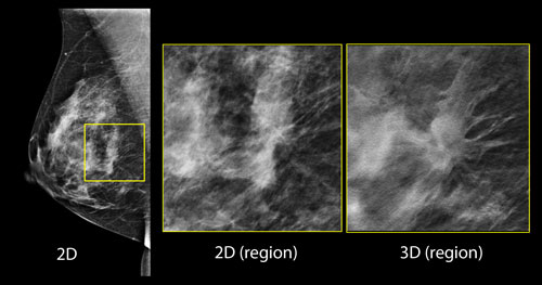 3D Mammogram Images