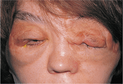Plexiform Neurofibroma Pictures