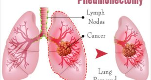 What is Pneumonectomy – Lung Removal Surgery, Procedure, Recovery