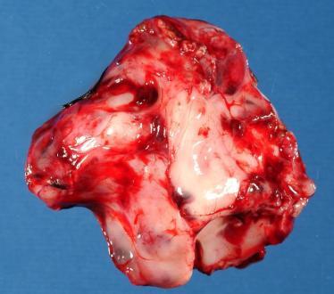 Ganglioglioma tumor Symptoms, Treatment, Prognosis