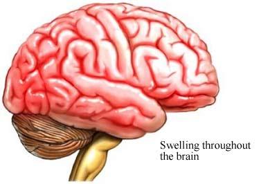 Autoimmune Encephalitis Symptoms