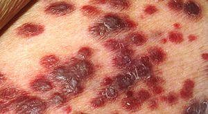 Neoplasm (Malignant & Benign) of Breast, Prostate, Colon, Skin