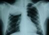 Askin's Tumor Symptoms, Survival Rate, Causes, Treatment