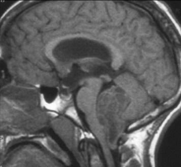 Rosette Forming Glioneuronal Tumor Grades, Symptoms, Radiology, Prognosis, Treatment