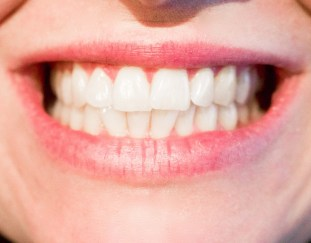 dont-let-fear-dentist-damage-oral-health