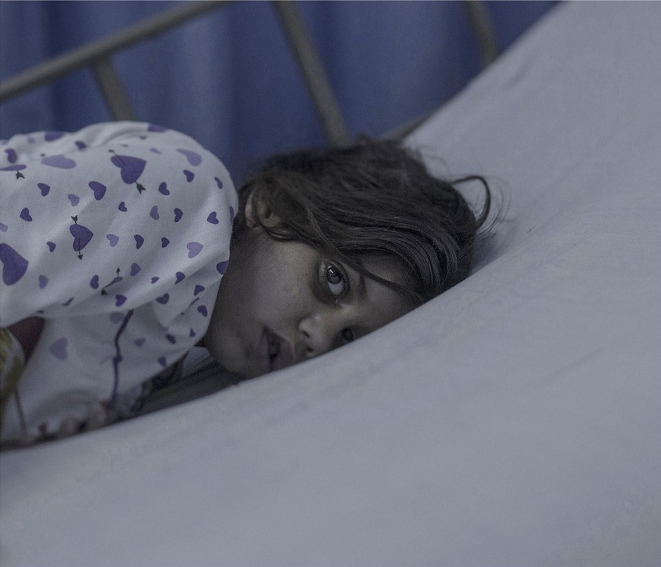 EXCLUSIVE, SPECIAL FEES APPLY. Must Credit - Magnus Wennman/Rex Mandatory Credit: Photo by Must Credit - Magnus Wen/REX Shutterstock (2853832m) Maram, 8, in Amman, Jordan Magnus Wennman: Where the children Sleep - 27 Sep 2015 Eight-year-old Maram had just come home from school when the rocket hit her house. A piece of the roof landed right on top of her. Her mother took her to a field hospital, and from there she was airlifted across the border to Jordan. Head trauma caused a brain hemorrhage. For the first 11 days, Maram was in a coma. She is now conscious, but has a broken jaw and can't speak.