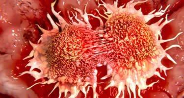 Cannabis & Krebs: Welche Hoffnung bietet das Hanf?